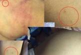 Bé 3 tuổi đau đớn với 30 vết kim châm trên người khi đi học về khiến dư luận ớn lạnh, bức xúc