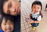 Bé 5 tuổi bị mẹ kế hành hạ khiến cơ thể kiệt quệ như người già làm cộng đồng mạng phẫn nộ